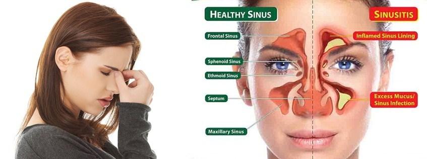 Cara Menyembuhkan Sinusitis