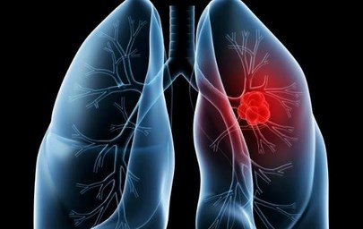 Mengenal Tanda Kanker Paru Yang Menyerang Tubuh Anda