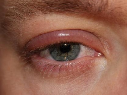 Obat Kelopak Mata Bengkak Bernanah