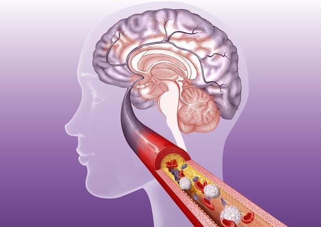 Obat Penggumpalan Darah Di Otak