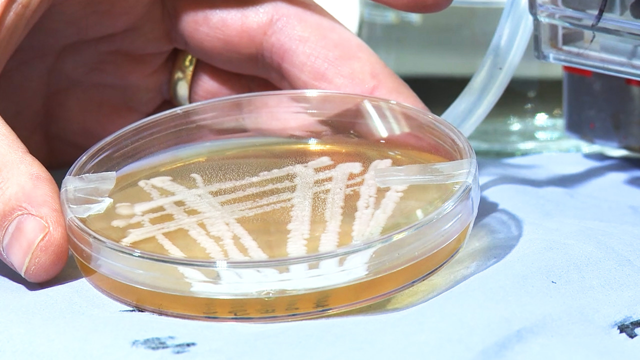 Petri dish with stripes of yeast culture