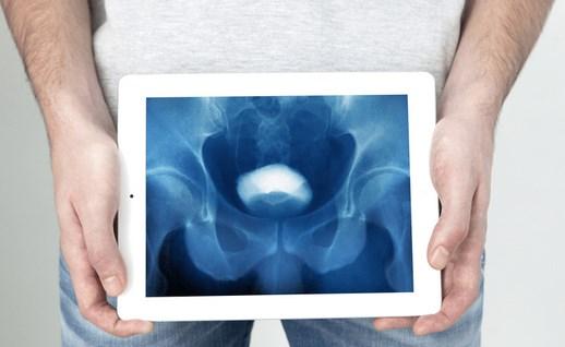Sakit Kencing Bisa Menjadi Pertanda Hadirnya Kanker Prostat