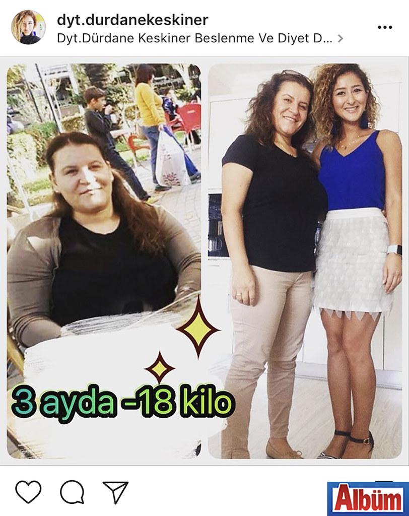 Diyetisyen Dürdane Keskiner, kilo vermenin mutluluğunu yaşayan danışanıyla bu fotoğrafı paylaştı.