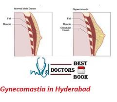 Gynecomastia in Hyderabad