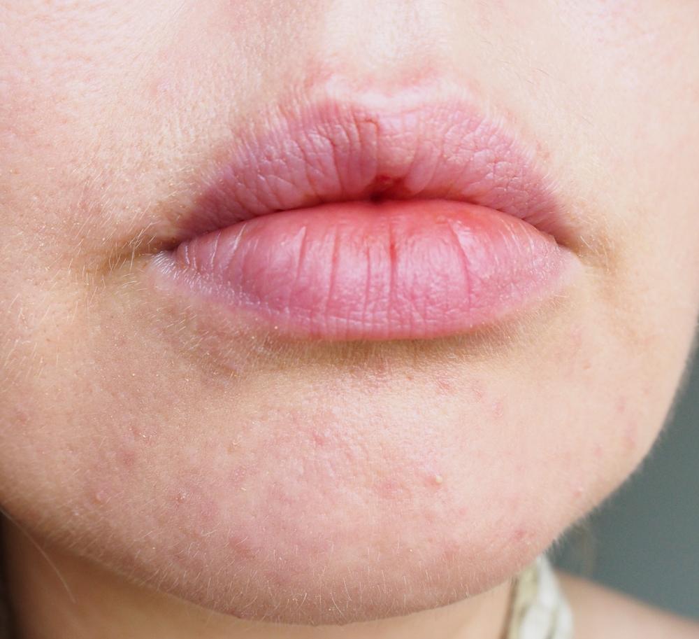huulitesti2