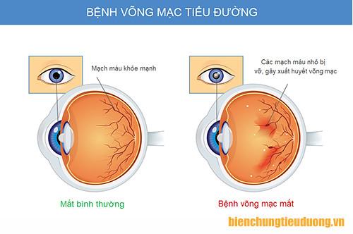 Biến chứng võng mạc tiểu đường gây xuất huyết, phù nề ở mắt
