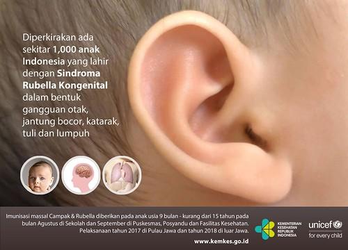 poster imunisasi MR unicef