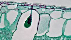 Angiosperm Morphology: Lithocyst in Upper Epidermis in Ficus Leaf