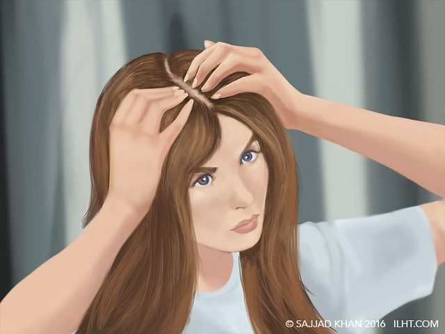 1# सिर पर बाल कम होना