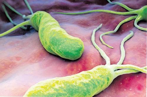 helicobacter-pylori-a6b53