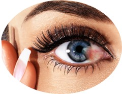 Cara Menghilangkan Selaput Putih Pada Mata