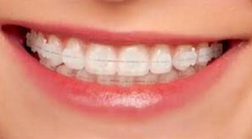 Phương pháp niềng răng lệch lạc hiện nay
