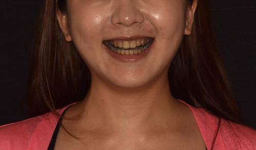 台中牙齒微整型推薦!誰說牙齒變色沒有救! (1)