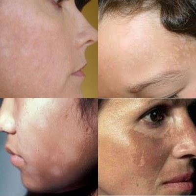 Cara Menghilangkan Panu Di wajah 100% Tanpa Bekas