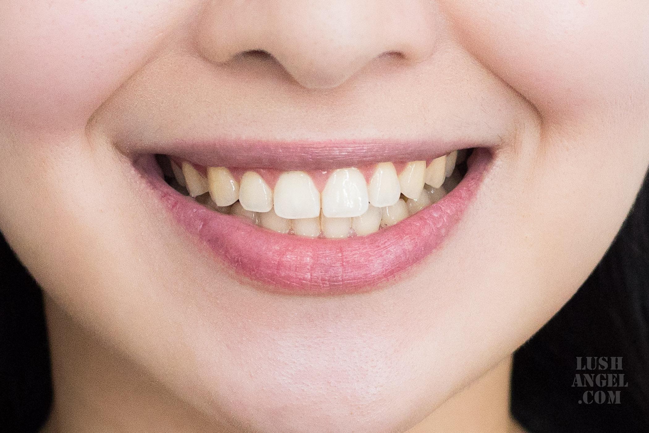 teeth-bleaching-review