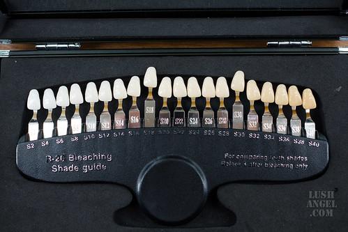 does-teeth-whitening-work