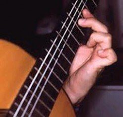 photo of guitarist with dystonic contractions in left hand
