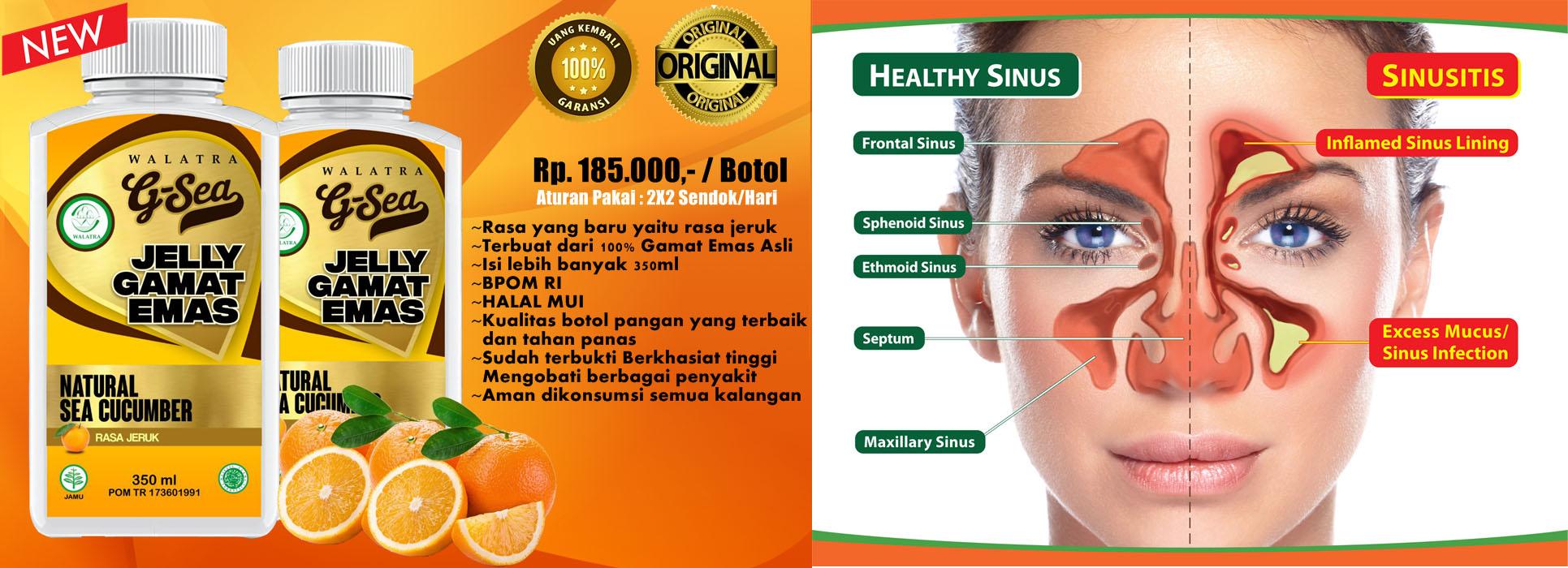 Cara Menghilangkan Bau Mulut Karena Sinusitis