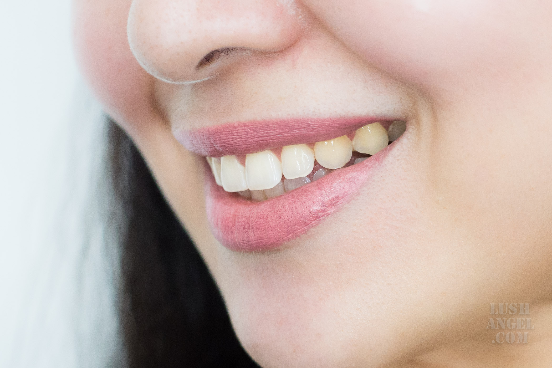 the-smile-bar-teeth-whitening-review