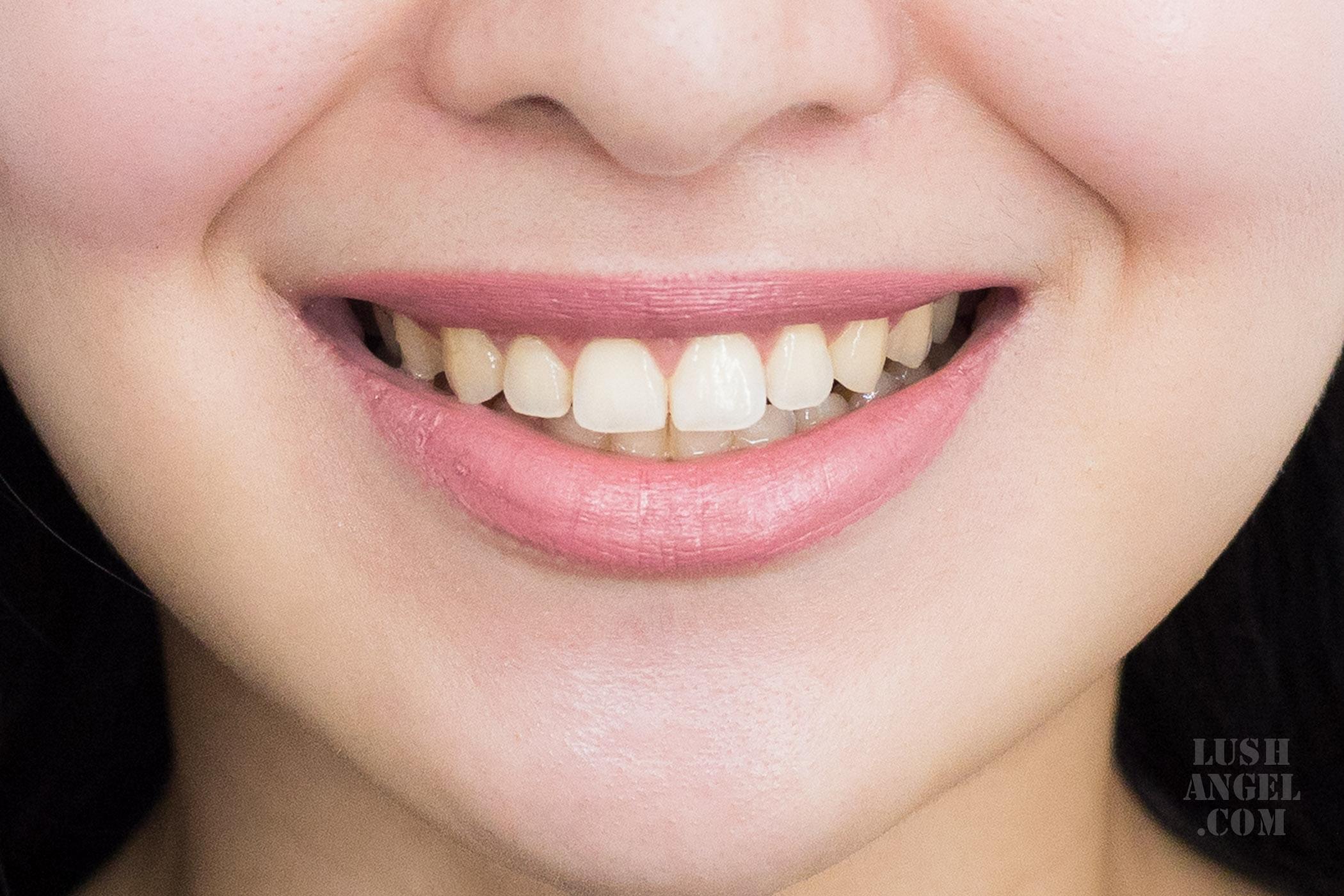 smile-bar-teeth-whitening-review