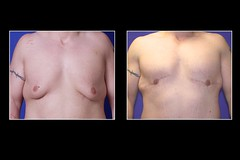 Male Breast Reduction 3