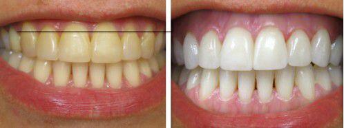Làm răng đẹp bằng cách bọc răng sứ