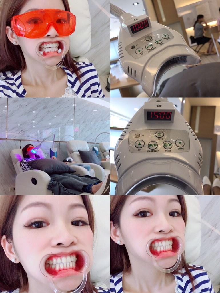 開始進行美齒課程-台中牙齒美白推薦