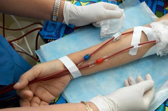 Makanan Untuk Penderita Anemia Aplastik