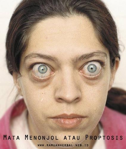 Penyakit Mata Menonjol atau Proptosis