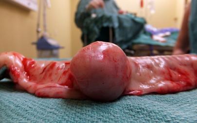 Obat Tumor Usus Besar