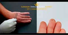 Verrucas & Wart Removal | London Dermatology Clinic