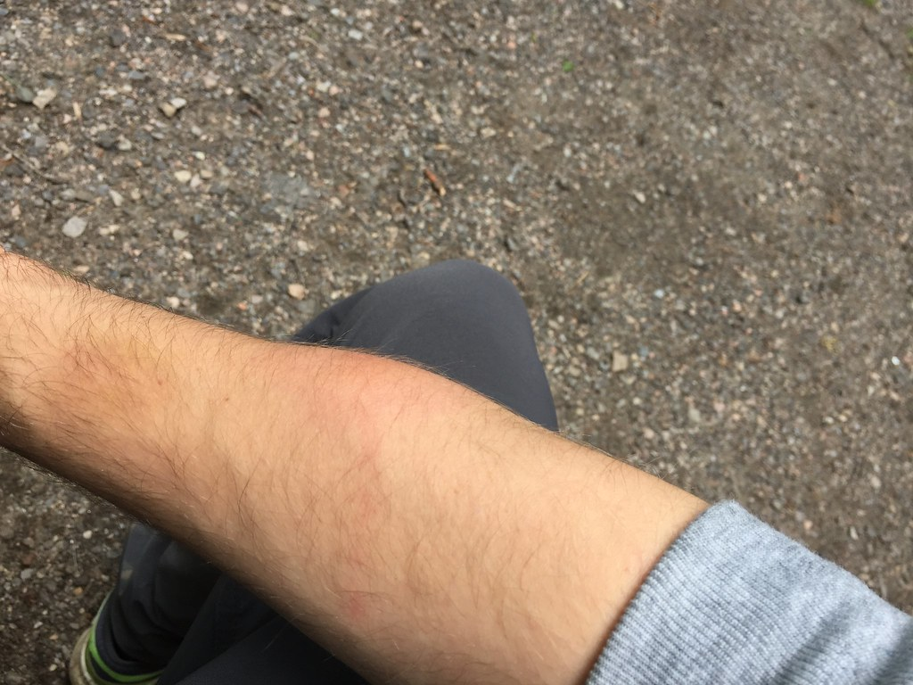 Mosquito bite reaction swollen arm