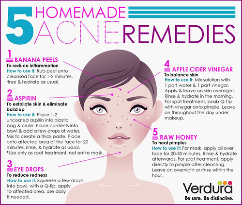 5 Homemade Acne Remedies