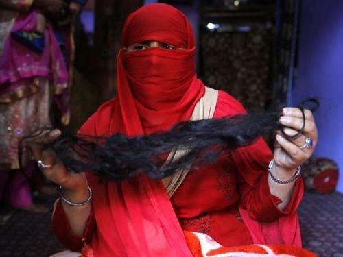 Tasleema, a Kashmiri woman, shows her hair after an alleged braid-chopping attack in the Natipora area of Srinagar.