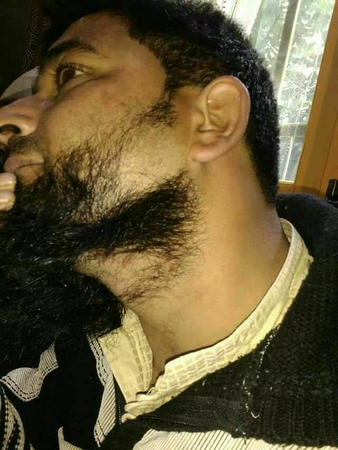 beard chopping, The incident occurred at Batamaloo area of Srinagar city and the victim has been identified as Farooq Ahmed Bhat son of Abdul Majid, a resident of Kashi Mohalla Batamaloo.
