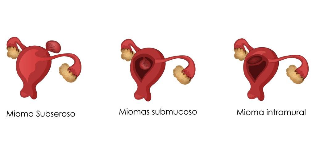 Obat Miom Di Apotik