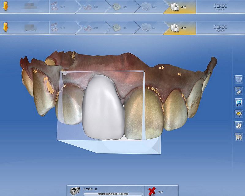 3.設計患者的全瓷冠-2