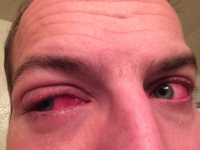 The Great Eye Infection of 2013