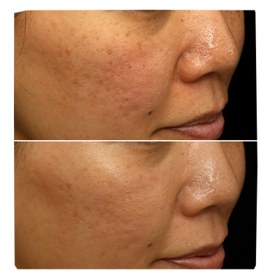 Collagen Induction Therapy from Iconic Medispa