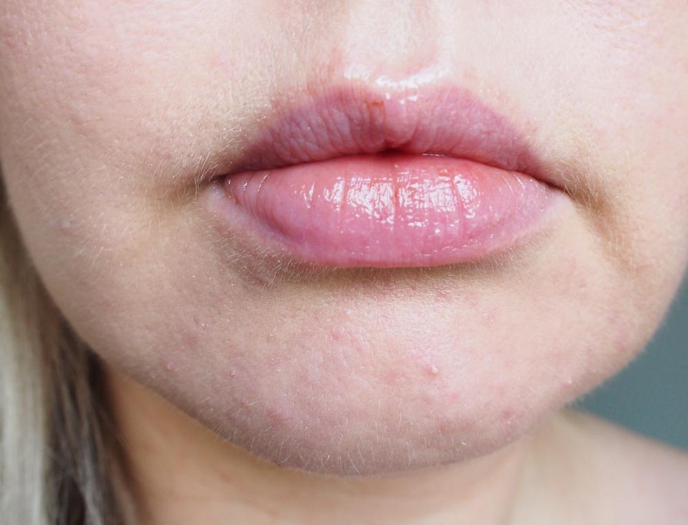huulitesti8vaikuttanut