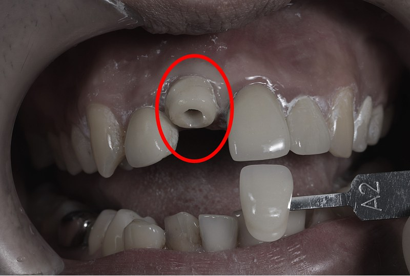 1.before(上門牙斷掉,患者想利用植牙+全瓷冠修復)