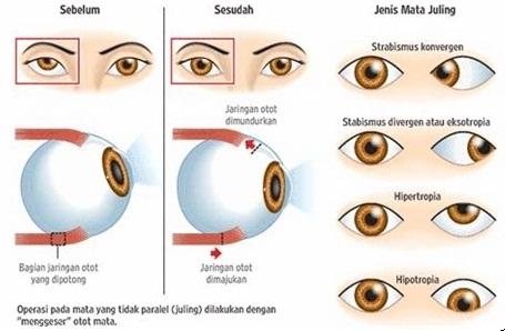 Obat Mata Juling Pada Anak
