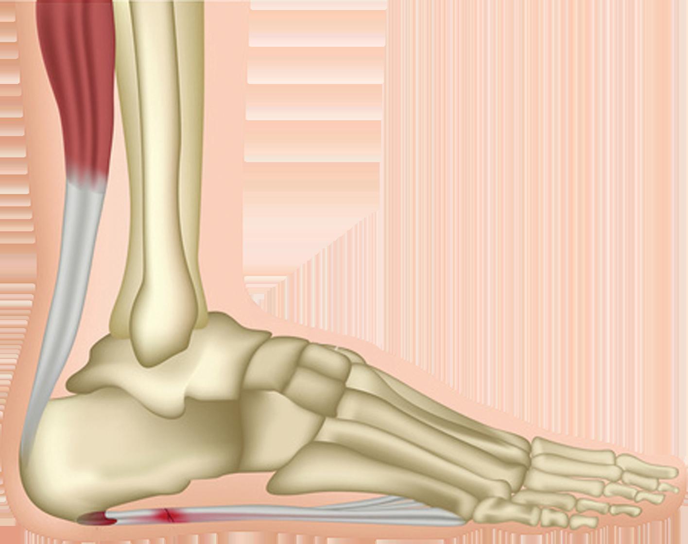 Phân bố trọng lượng cơ thể bình thường khi bàn chân ở trên mặt phẳng