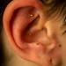 A patient's ear after five needles were inserted by former Air Force Colonel, Dr. Stephen Burns, during a Battlefield Acupuncture training session at the Air Force Acupuncture Center at the Malcolm Grow Medical Clinic, Joint Base Andrews, Md., Jun. 21, 2017. (U.S. Air Force photo by J.M. Eddins Jr.)