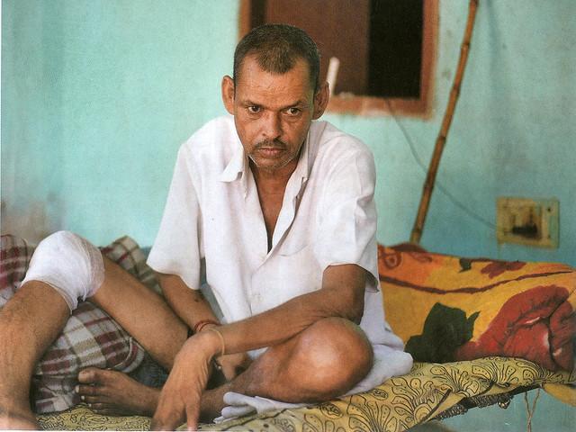 गुरूग्राम के बंधवाड़ी गाँव निवासी घनश्याम दो साल से बीमार हैं। इनके परिवार का कहना है कि दूषित पानी बीमारी का कारण है