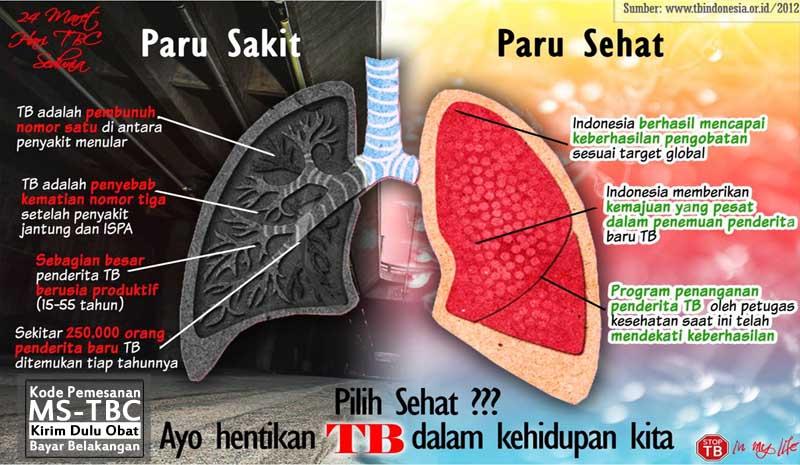 Obat TBC Paten Dan Generik