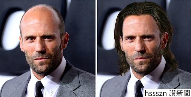 bald-celebrity