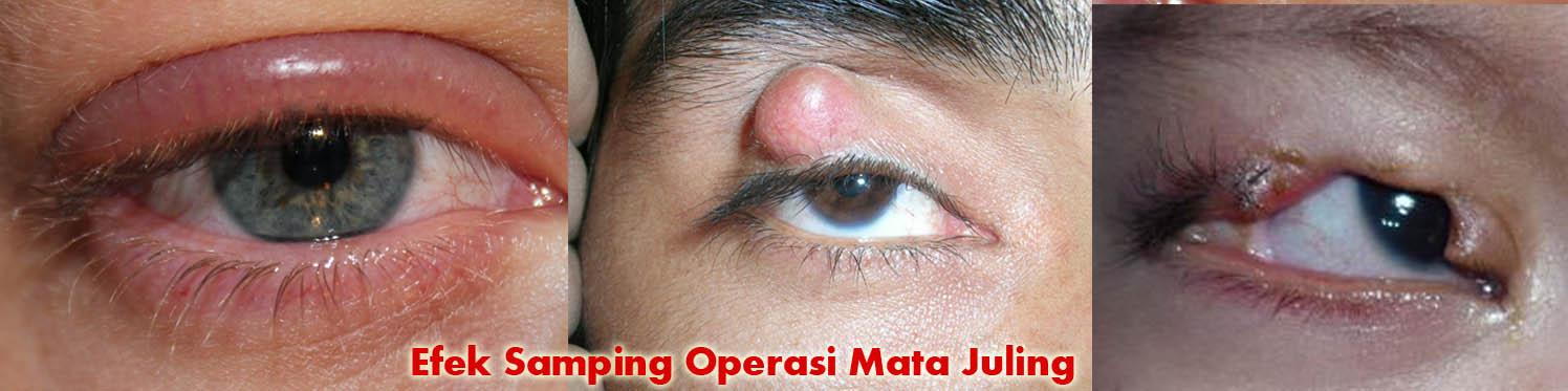 Efek Samping Operasi Mata Juling