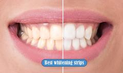 Best whitening strips
