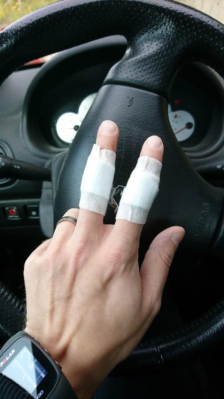 Henrin haavoittunut käsi